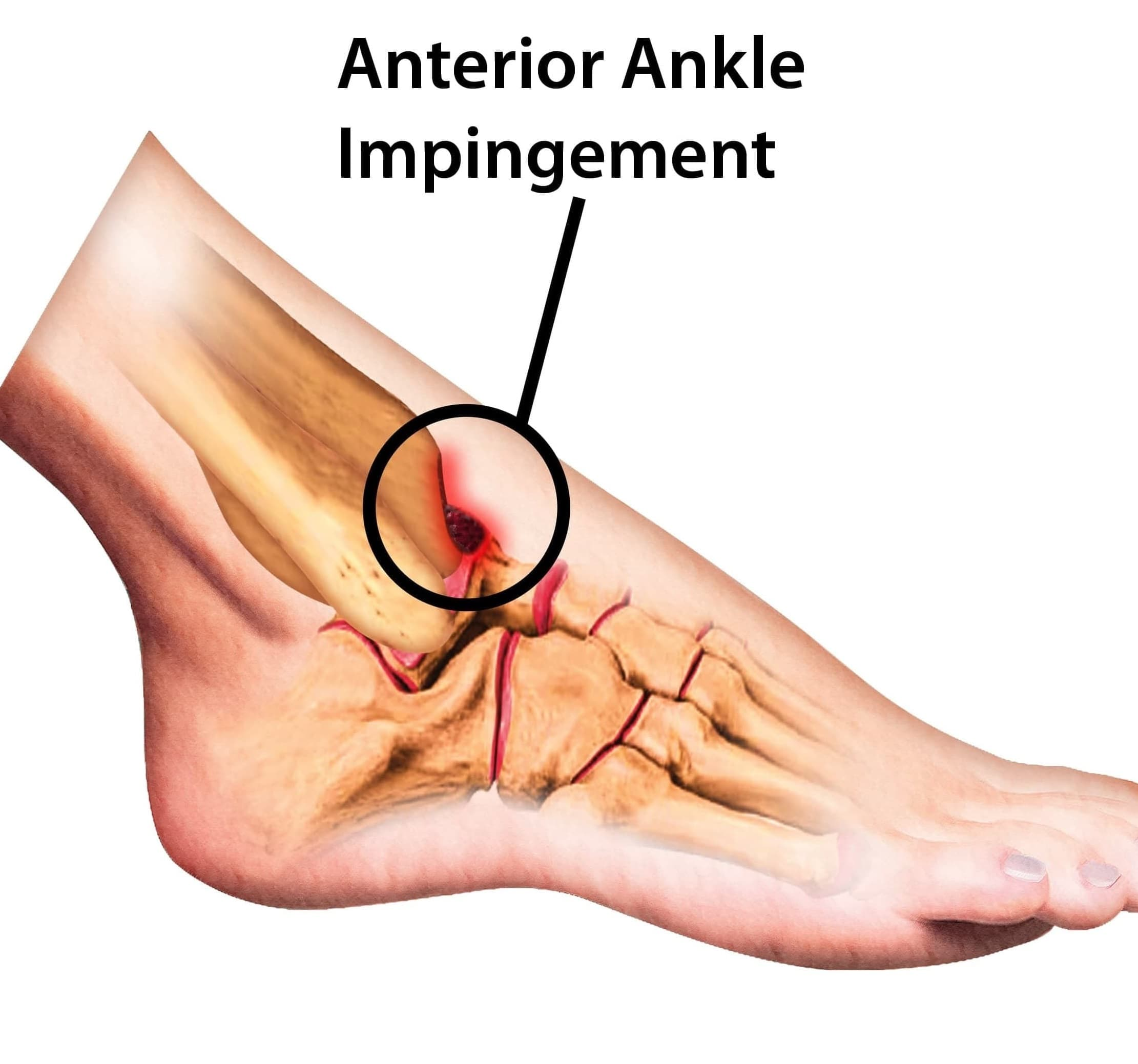 anterior ankle impingement
