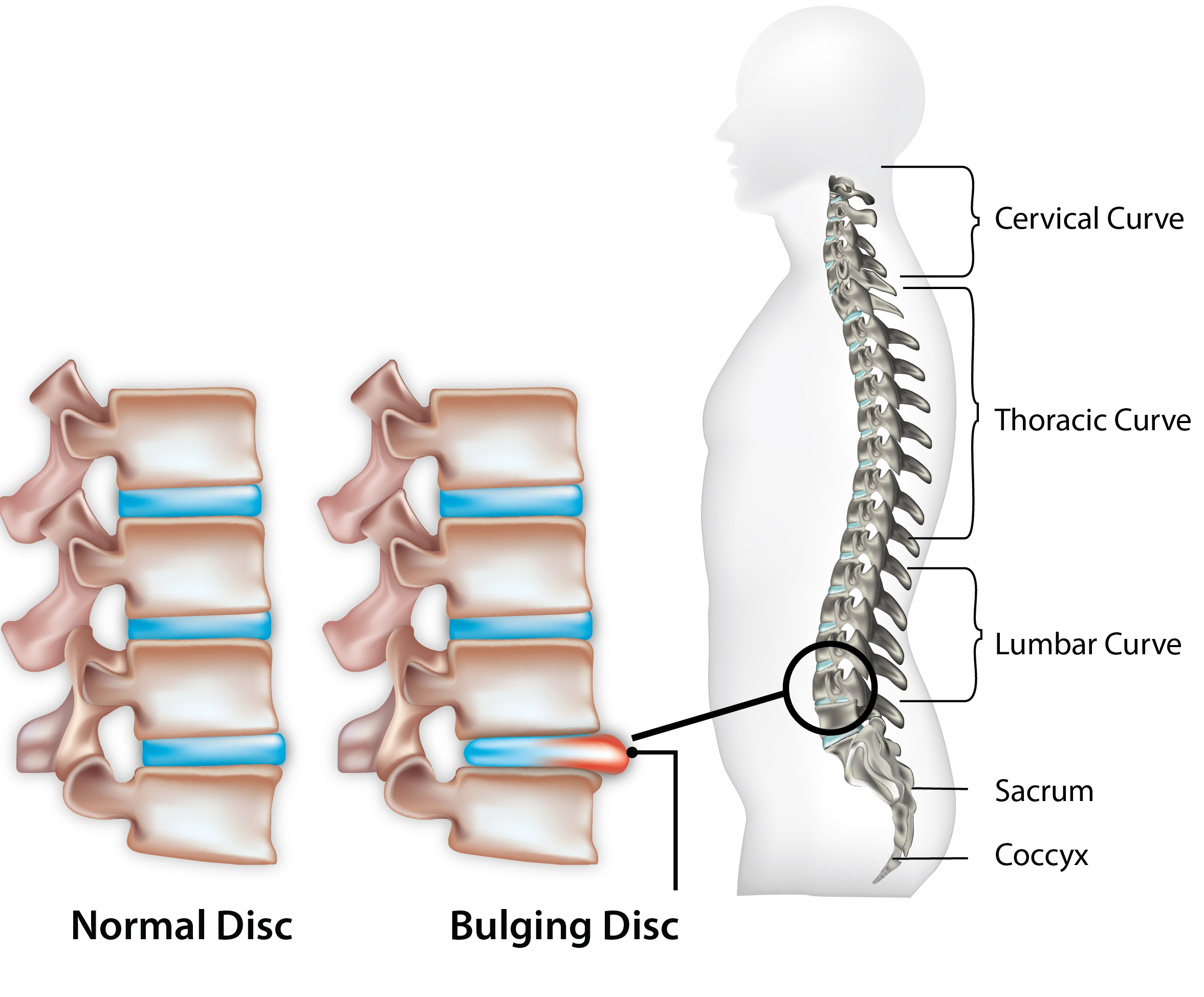 Herniated Disc on lumbar location