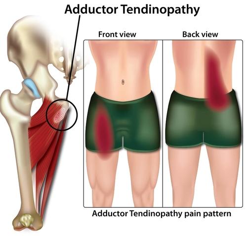 adductor tendinopathy