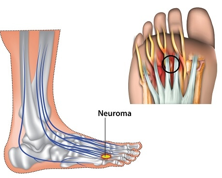 metatarsalgia injury