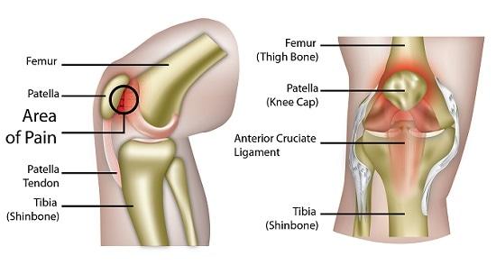 Patellofemoral Pain Syndrome - Causes and Management   SportNova UK