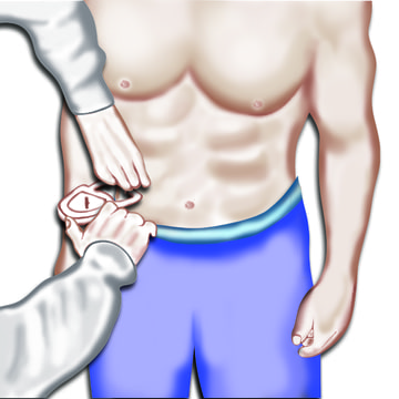 Body Fat caliper abdominal measurement