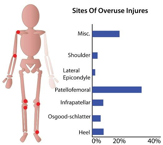 Overuse Injuries