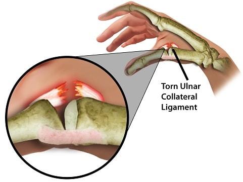 sprained thumb injury