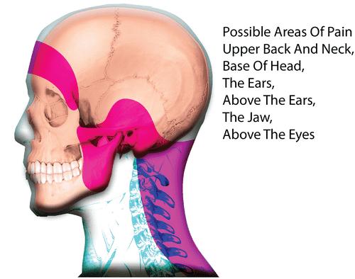 Cervicogenic Neck Headache