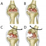 ACL (anterior cruciate ligament) injury