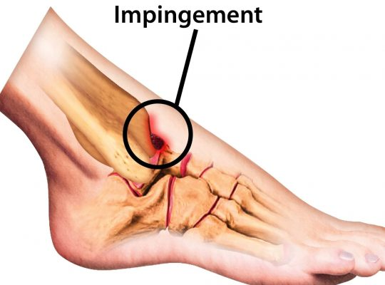 Anterior Ankle Impingement main