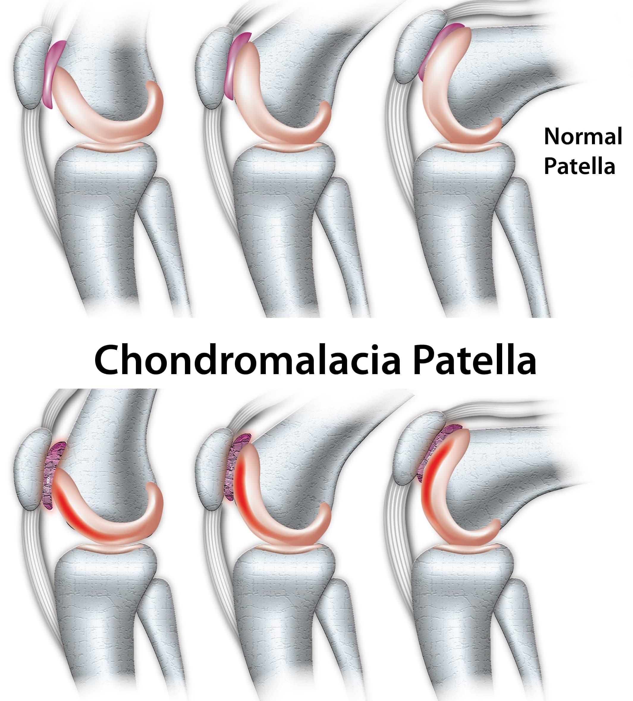 Chondromalacia Patella
