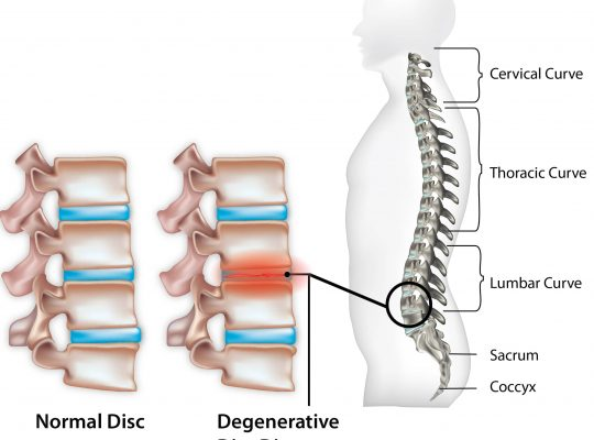 Degenerative Disc Disease-min