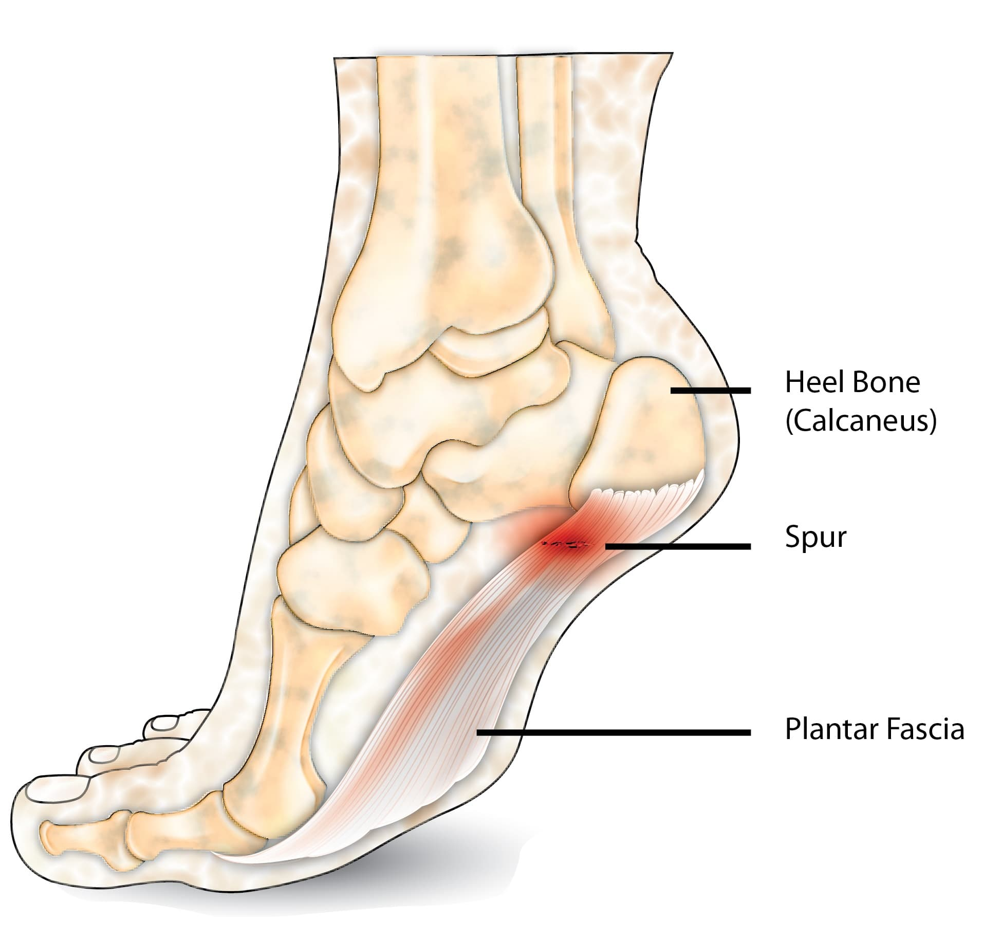 heel spur injury