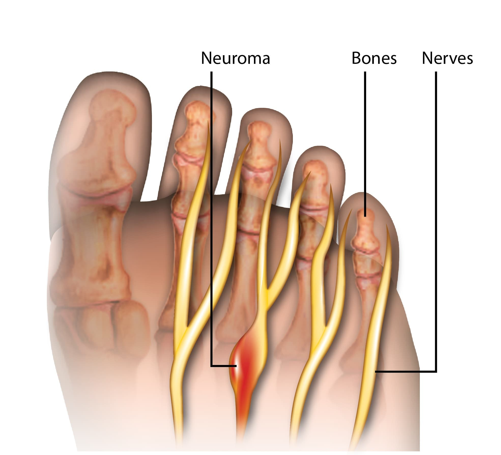 mortons neuroma foot