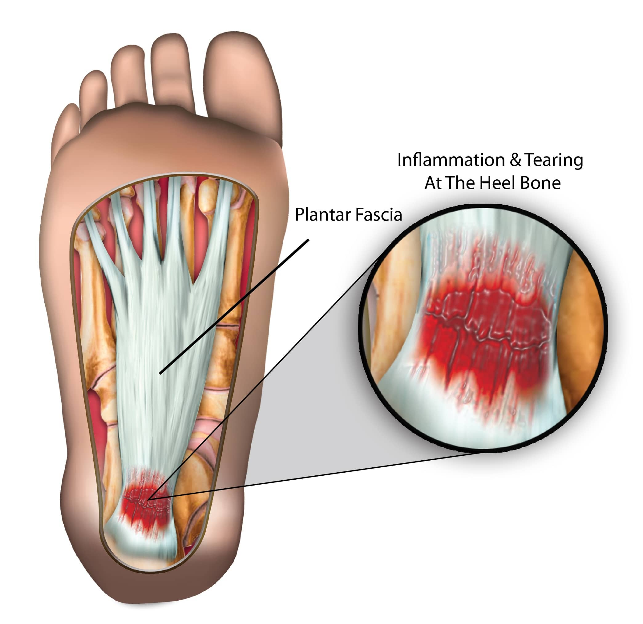 facitis or plantar symptoms strain foot rupture and fascia heel causes planter sports injuries