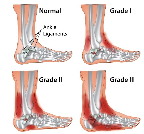 High Point Lacrosse >> Sprained Ankle (Ankle Sprain) Info and Treatment | SportNova UK