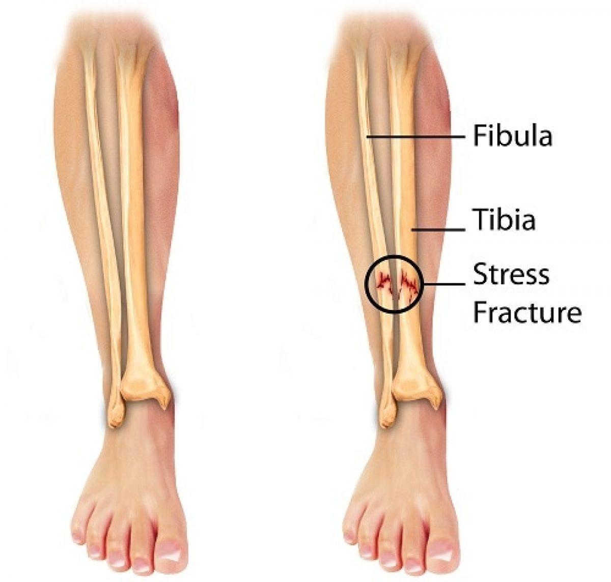 Stress Fracture Causes Diagnosis Treatment Sportnova Uk