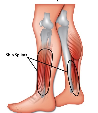 Shin Splints Symptoms Causes And Diagnosis Sportnova Uk