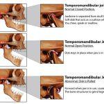 Temporomandibular Joint (TMJ) Dysfunction