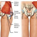 Trochanteric (Hip) Bursitis