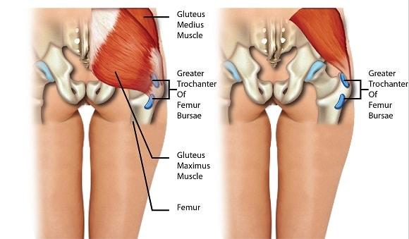 Trochanteric hip bursitis