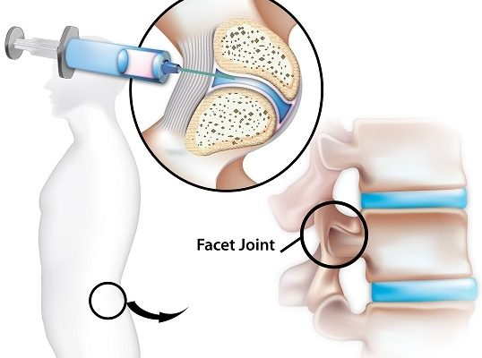 Facet-joint-pain