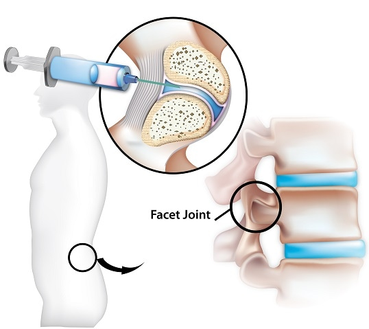 Facet Joint Pain