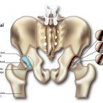 Hip Pain (Osteoarthritis)