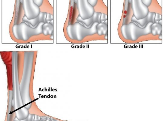 Achilles-tendonitis-tendinitis