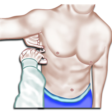 armpit caliper measurement