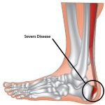 Sever's Disease (Heel Pain)