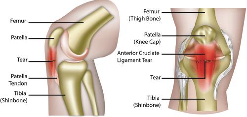 patellar tendinopathy