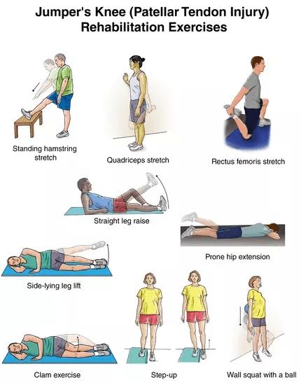 patellar tendinopathy exercises