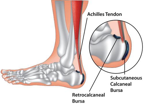 Retrocalcaneal bursitis